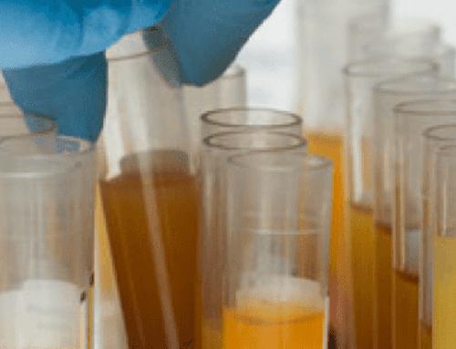 Plasma iperimmune: lo studio del Centro Regionale Sangue dell'Emilia-Romagna